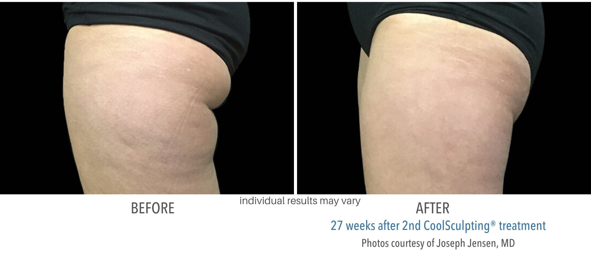 CoolSculpting outer thighs