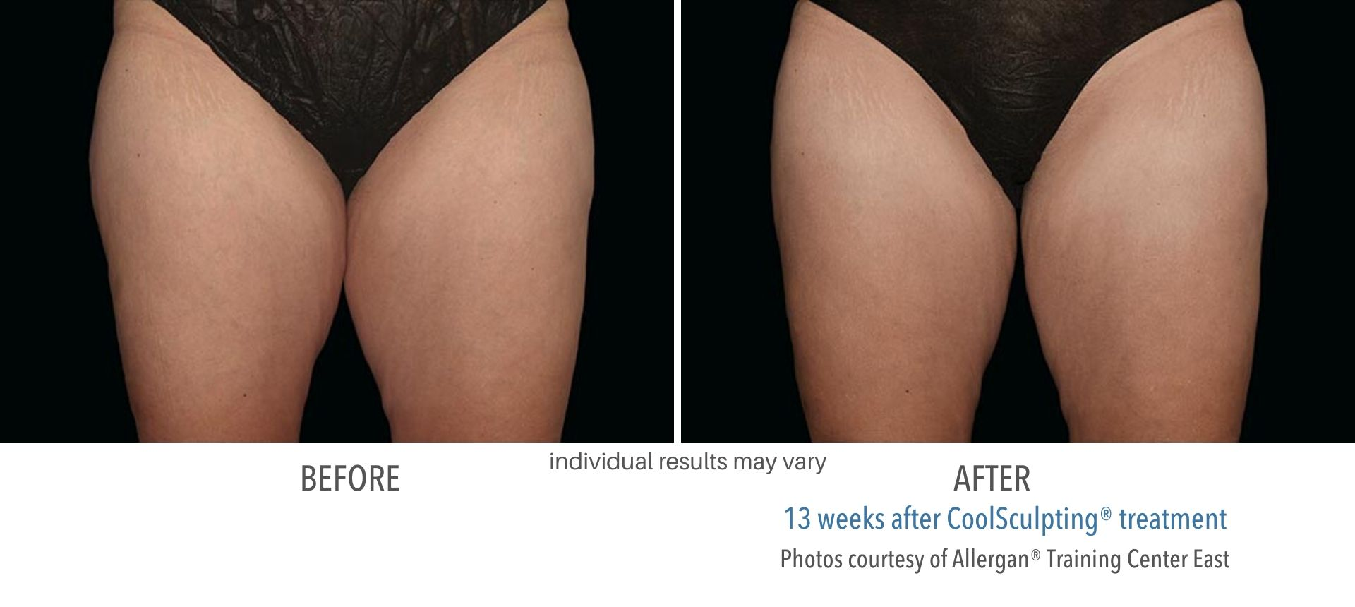 CoolSculpting inner thighs